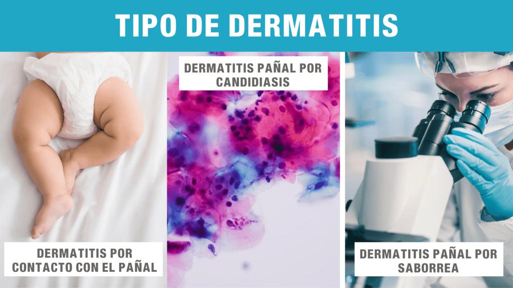 tipos de dermatitis pañal