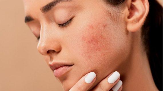 Cómo evitar el acné en el embarazo
